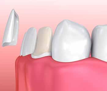 covington ga dentist offers lab fabricated porcelain veneers as a treatment option for imperfect teeth 5f512a4eb9a6b