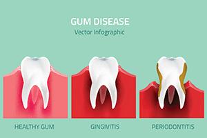 periodontics img2