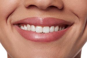 teeth whitening img1